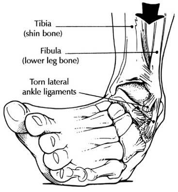 Description: ankle.jpg