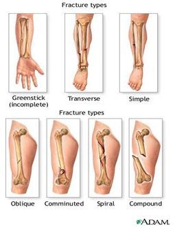 Description: fracture types image