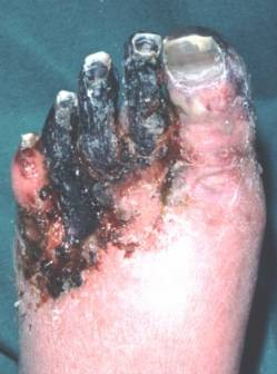 Description: gangrenefoot.jpg