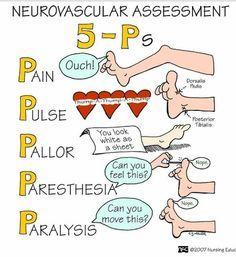 Description: orthopedic fracture mnemonic - Google खोज: