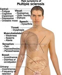 http://nursingfile.com/wp-content/uploads/2013/12/multiple-sclerosis-249x300.jpg