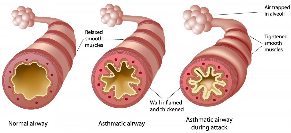 Asthma Pathophysiology airway diagram