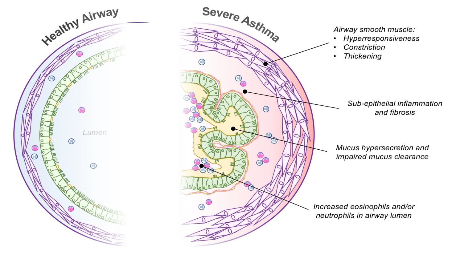 info-graphic about Severe Asthma Pathophysiology, Healthy airway and what is severe asthma
